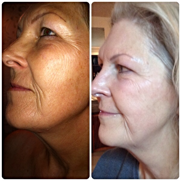 Anti-Age before & after